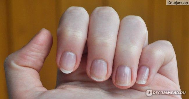 Укрепитель ногтей Умная Эмаль увлажняющий гель-укрепитель фото