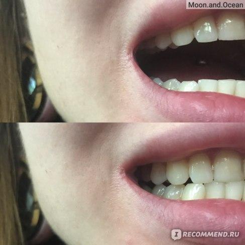 Зубная паста BlanX Pro pure white Чистый белый  фото
