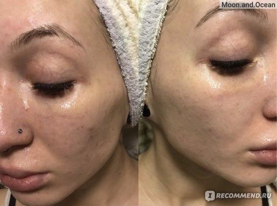 Тканевая маска для лица Quret HELLO с древесным углем (очищающая) фото