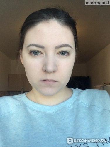 зажившие после коррекции без макияжа