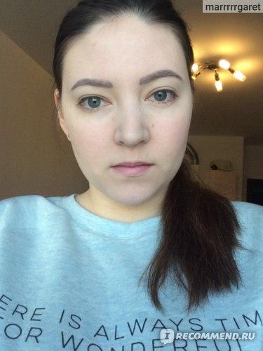после коррекции зажившие с легким макияжем лица