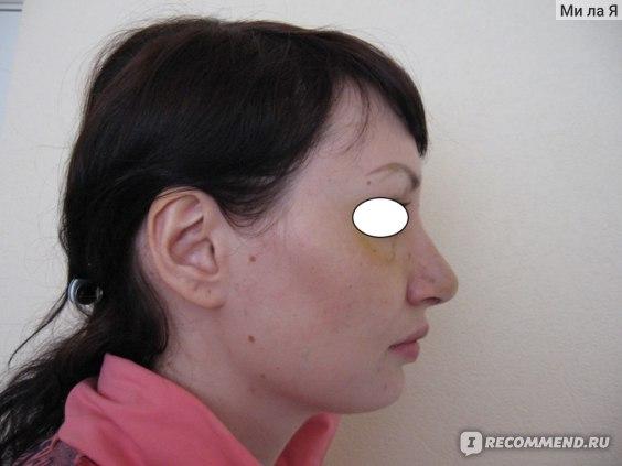 Ринопластика / Пластика носа фото