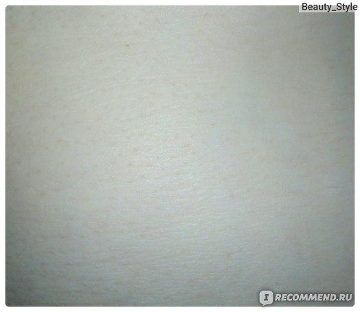 Отрубиевидный лишай фото/после лечения