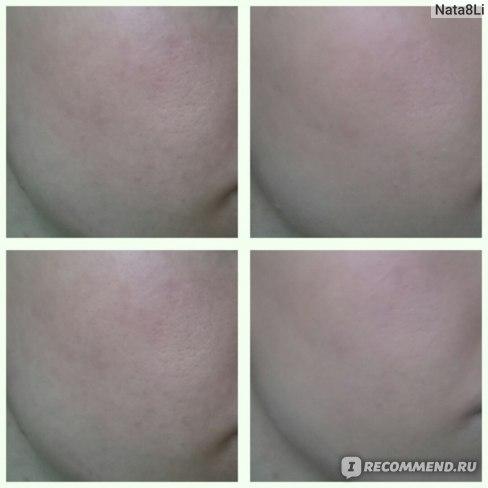 Сверху голая кожа + персиковый тон. Ниже голая кожа + бежевый тон.