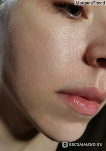 кожа после нанесения сыворотки