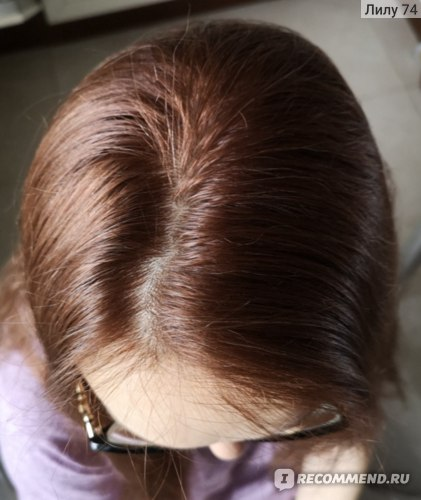 Видны единичные седые волоски