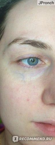 Сыворотка для лица Elizavecca Witch Piggy Hell-Pore Bifida Pure Ample фото