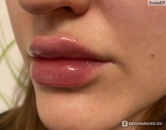 Увеличение губ препаратом Hyafilia Classic Plus 1.0 фото