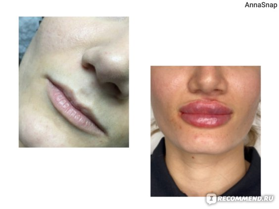 Филлер для губ Juvederm Ultra Smile фото