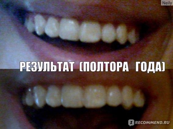 Брекет-системы / брекеты / ортодонтические скобы фото