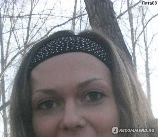 Жировики на лице : фото