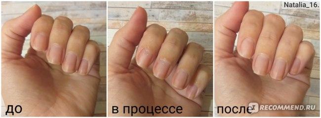 Средство для удаления кутикулы CATRICE 90% Natural Cuticle Remover