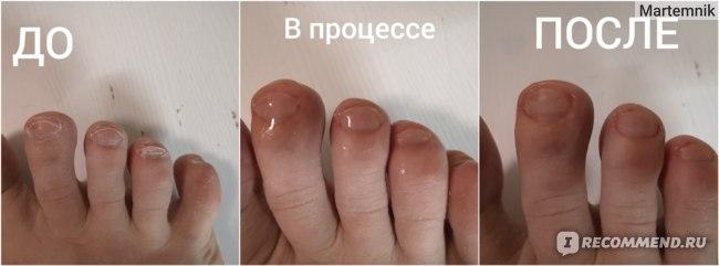 Гель для ног Derma Pharms UK Биогель для педикюра и маникюра фото