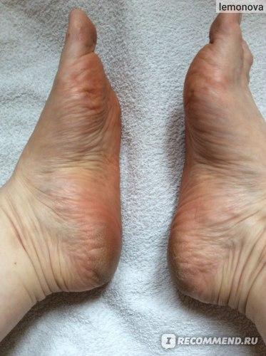 Кератоз кожи стоп, трещины, огрубевшая кожа пяток