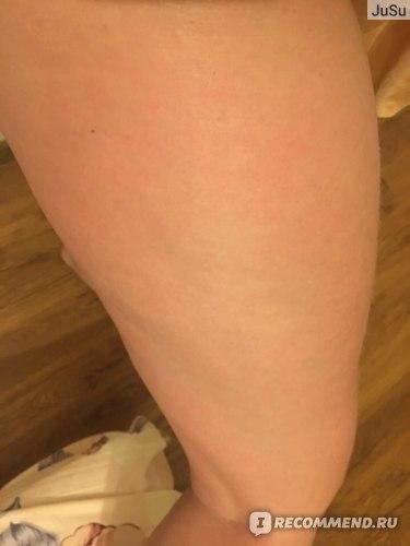 Нога после 10 дневного применения.Фото специально сделано при том же освещении.