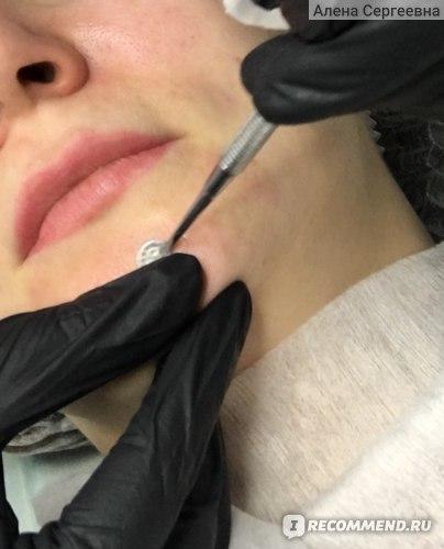 Ультразвуковая чистка лица в салоне фото
