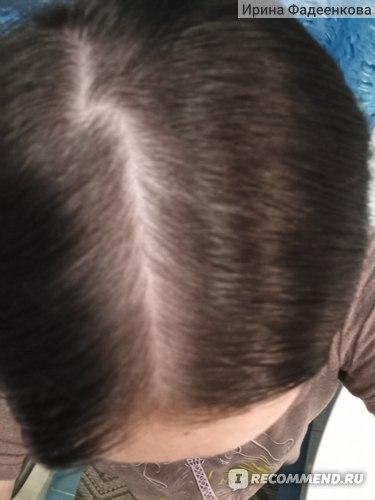 Краска для волос Avon Advance Techniques professional hair colour  фото
