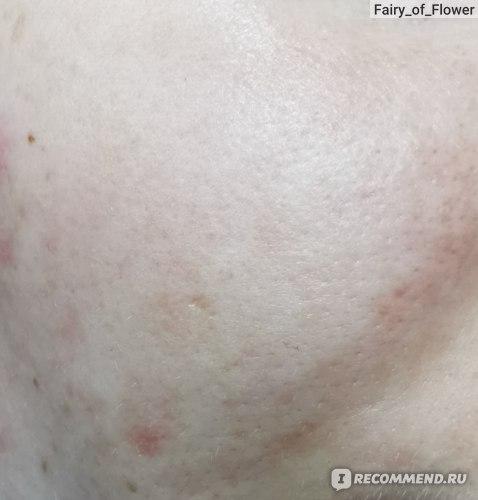 Участок кожи после впитывания эмульсии. Заметно, что красота спала.
