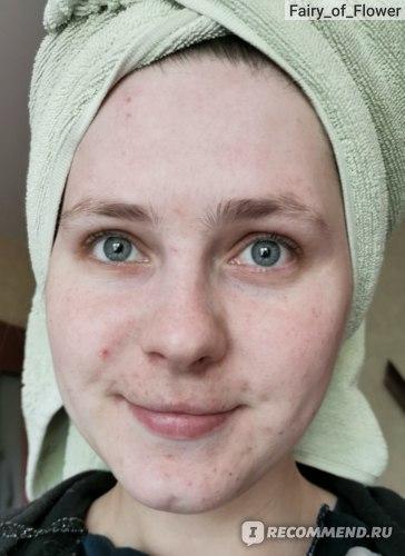 Сухое чистое лицо