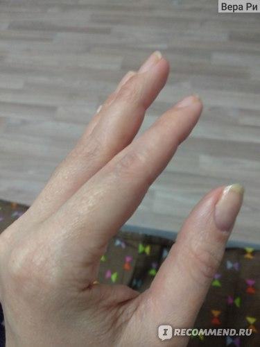 Крем Скин-Кап для лечения аллергических заболеваний кожи фото