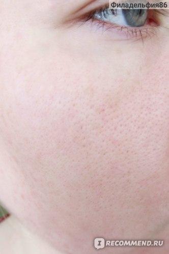 Моя кожа после полуторанедельного применения пилинга и осветляющей сыворотки