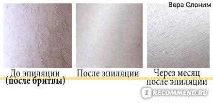 До эпиляции(после бритвы), после эпиляции, через месяц после первой эпиляции