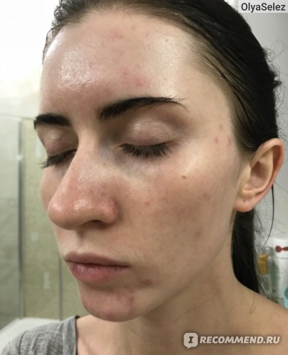 Сыворотка для коррекции акне и возрастных изменений кожи SkinCeuticals BLEMISH&AGE DEFENSE фото