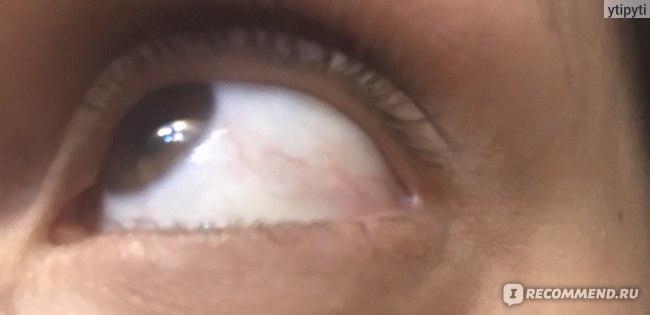 Капли для глаз  Актипол фото