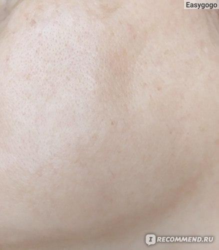 Восстанавливающий ночной крем для лица Dari Cosmetics Overnight Scar Cream for Face