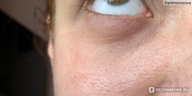 Глаза после