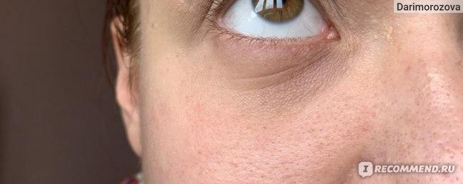 Глаза до