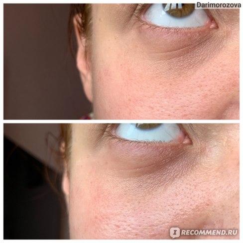 Глаза до/после