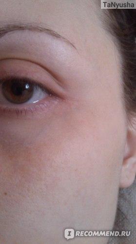 это фото ДО, здесь я фотала мимические морщинки возле глаз