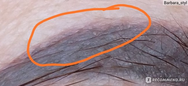 Это не волоски, а шрамы