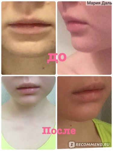 Хейлопластика - увеличение губ хирургическим путем фото