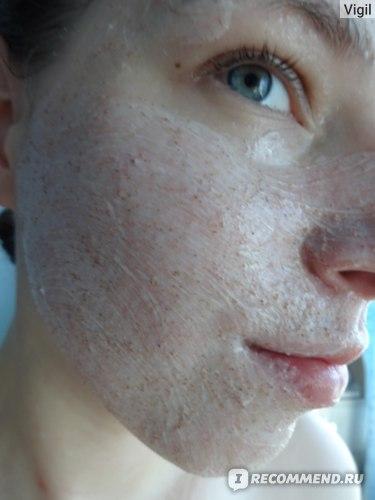Скраб на лице