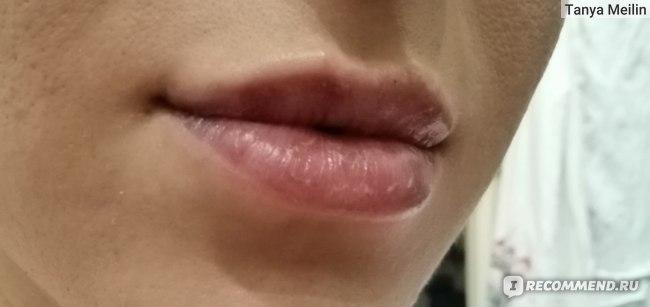 Увеличение губ с помощью препарата гиалуроновой кислоты фото
