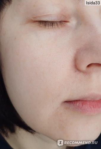 Моя кожа спустя месяц после использования крема