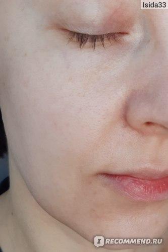 Моя кожа после нанесения крема