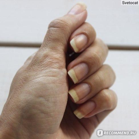 """""""Чистые"""" ногти"""
