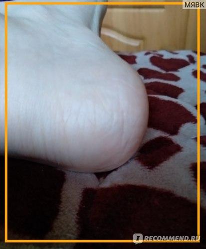 Сода и грибок ногтей на ногах отзывы