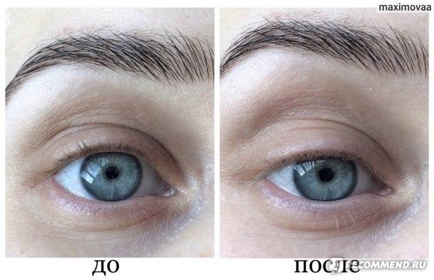 Сыворотка Teana против морщин и мешков под глазами в растительных капсулах Pretty Eyes фото