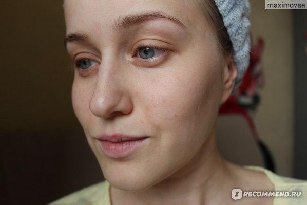 кожа ДО применения маски Eveline Bubble Face Mask