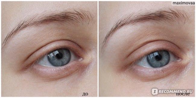 Гидрогелевые патчи для глаз Venzen eye mask  с колоидным золотом и спирулиной фото