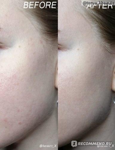 Сыворотка The skin house Dr. Clear Magic Serum фото