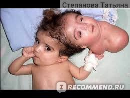 Аномалии тела TLC фото