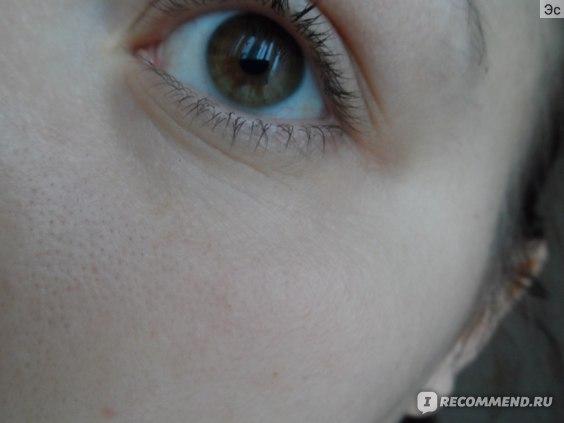 """Гель для кожи вокруг глаз Ethicare Remedius (Индия) """"Instafil Gel"""" - гель филлер, заполняющий морщины вокруг глаз фото"""