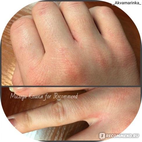 Посмотрите какая сухая!! Сколько ранок...потрескавшаяся кожа...А между пальчиками целая рана(