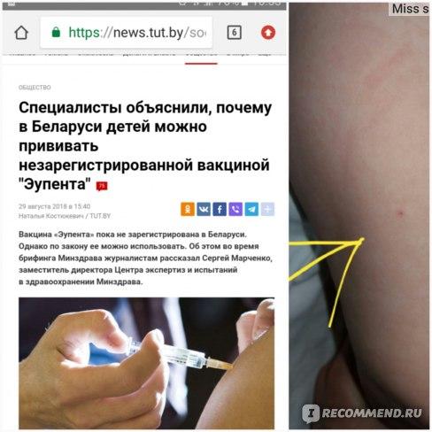 пятикомпонентная вакцина «Эупента»