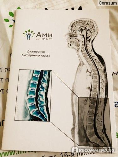 Магнитно-резонансная томография (МРТ) головного мозга